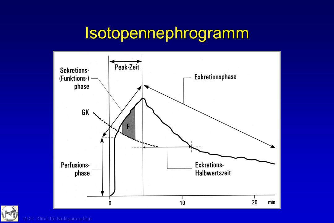 Verschiedene charakteristische Verläufe der Nierenfunktionskurve bei unterschiedlichen Störungen