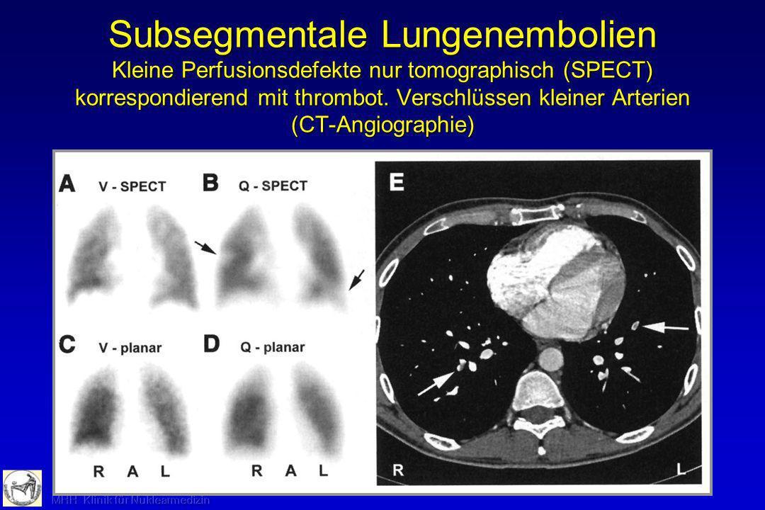 Lunge: Ventilations- und Perfusionsszintigraphie Indikationen - Lungenembolie Grad I und II (Primärverfahren in Verbindung mit Röntgen-Thorax: Sehr hoher negativer prädiktiver Wert) - Berechnung der Shuntgröße bei Rechts-Links- Shunt (nur Perfusionsszintigraphie) - Voraussage der postoperativen Lungenfunktion