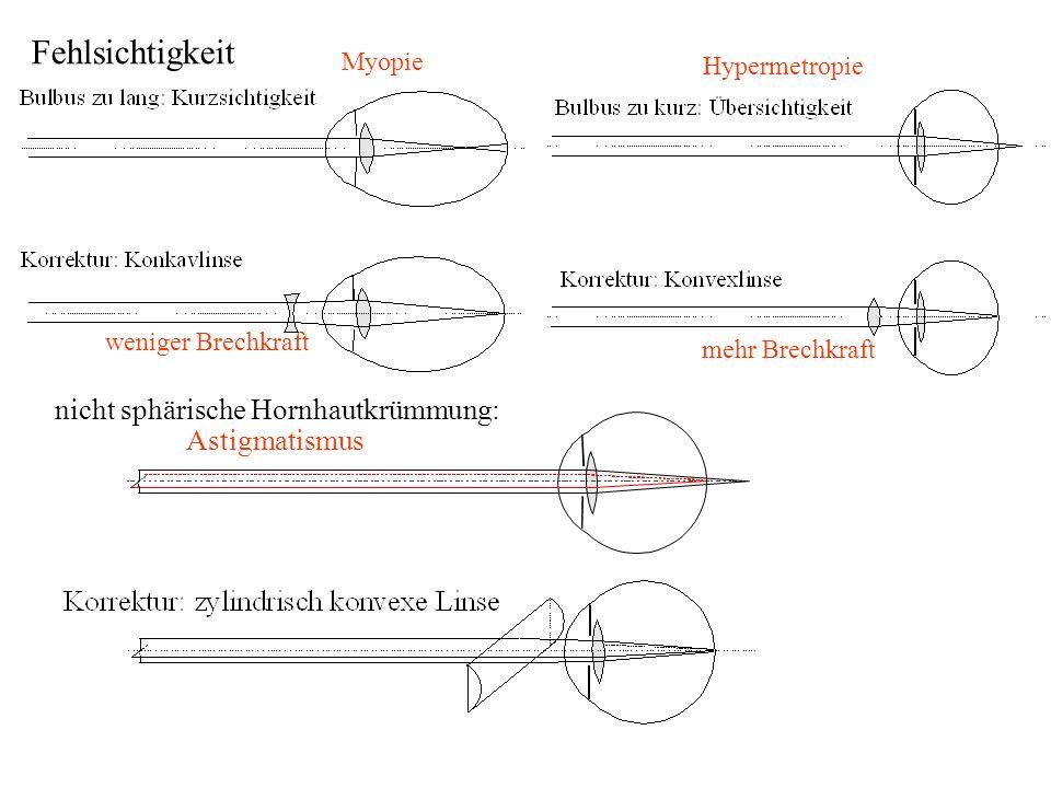Myopie Hypermetropie Fehlsichtigkeit weniger Brechkraft mehr Brechkraft