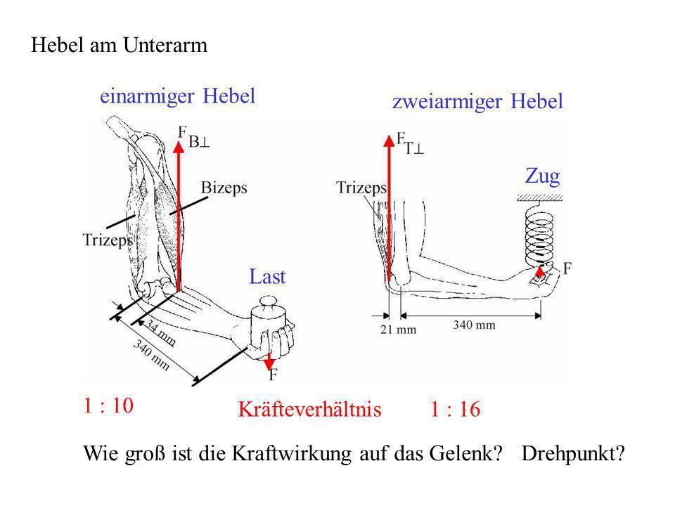 Hebel am Unterarm Last Zug 1 : 10 1 : 16Kräfteverhältnis Wie groß ist die Kraftwirkung auf das Gelenk? Drehpunkt? einarmiger Hebel zweiarmiger Hebel
