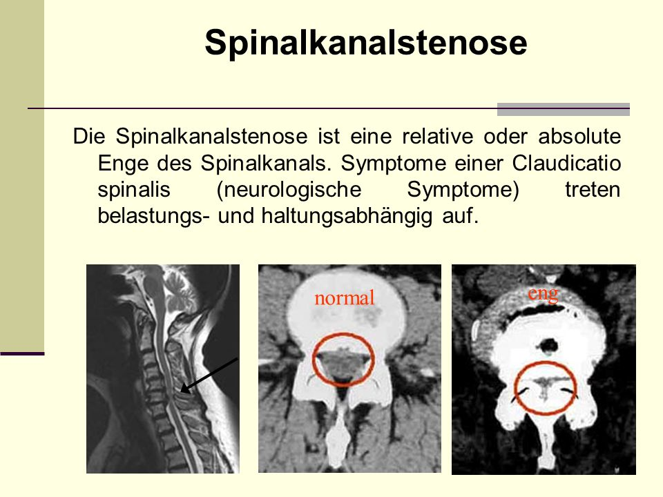 Spinalkanalstenose Die Spinalkanalstenose ist eine relative oder absolute Enge des Spinalkanals. Symptome einer Claudicatio spinalis (neurologische Sy
