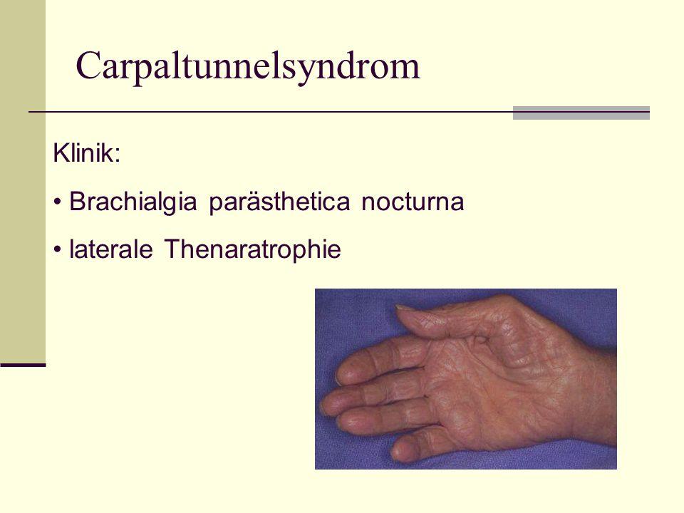 Carpaltunnelsyndrom Klinik: Brachialgia parästhetica nocturna laterale Thenaratrophie