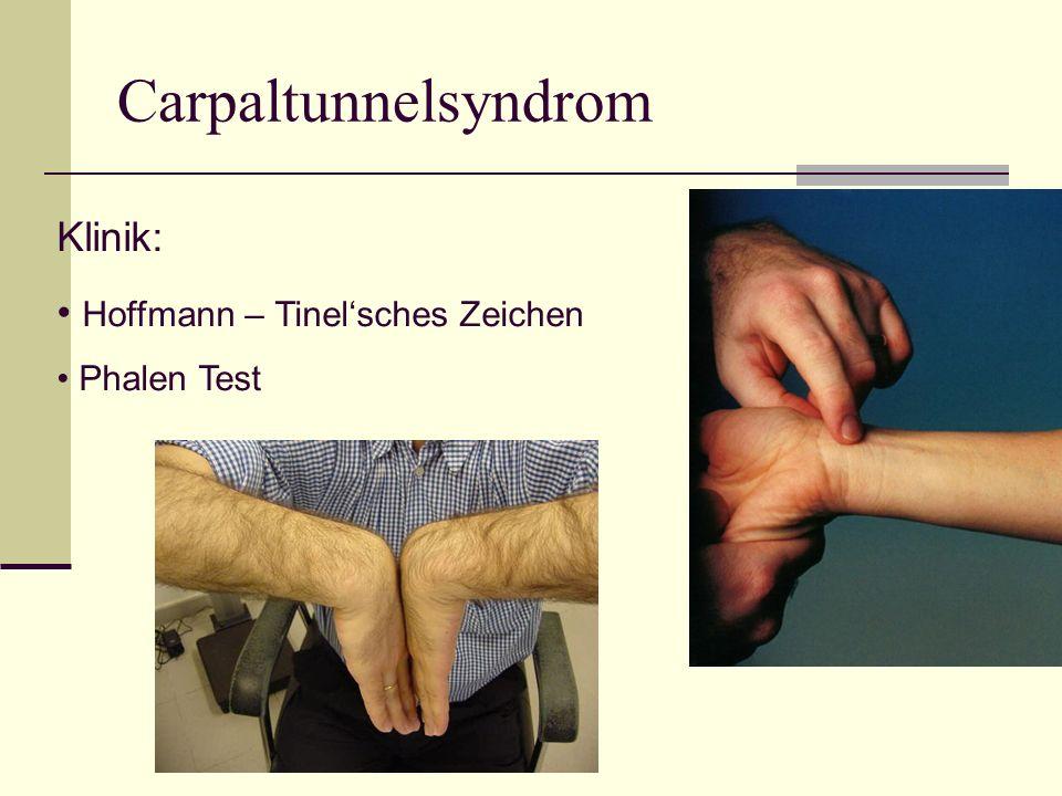 Carpaltunnelsyndrom Klinik: Hoffmann – Tinelsches Zeichen Phalen Test