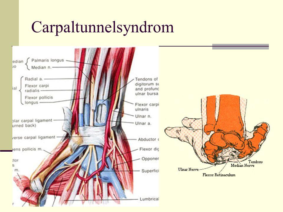 Disponierende Faktoren: Hypothyreose Akromegalie Gravidität Stillzeit Adipositas Frakturen Myelom Gicht Sehenenscheidenverdickung Dialyse