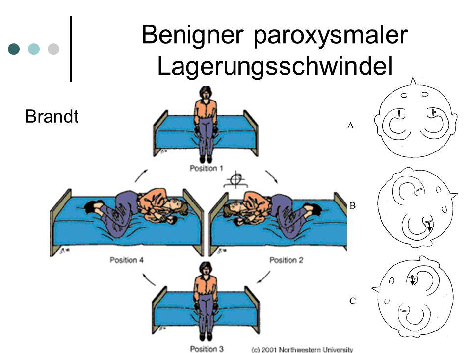 Benigner paroxysmaler Lagerungsschwindel Brandt