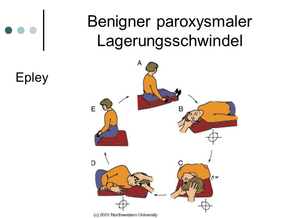 Benigner paroxysmaler Lagerungsschwindel Epley