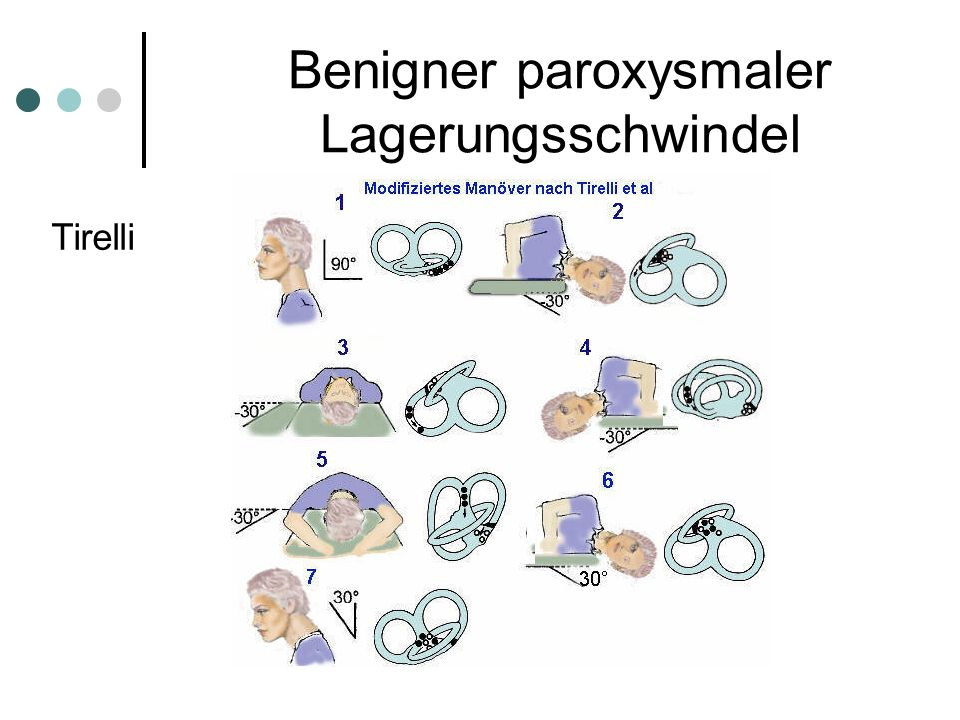 Benigner paroxysmaler Lagerungsschwindel Tirelli