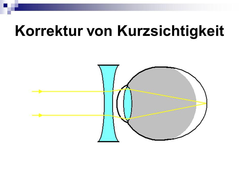 Korrektur von Kurzsichtigkeit