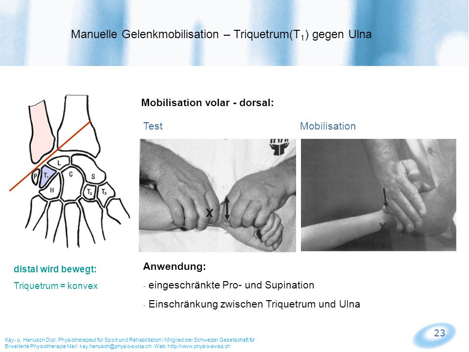 23 Mobilisation volar - dorsal: Test Mobilisation Manuelle Gelenkmobilisation – Triquetrum(T 1 ) gegen Ulna Kay- u. Hanusch Dipl. Physiotherapeut für