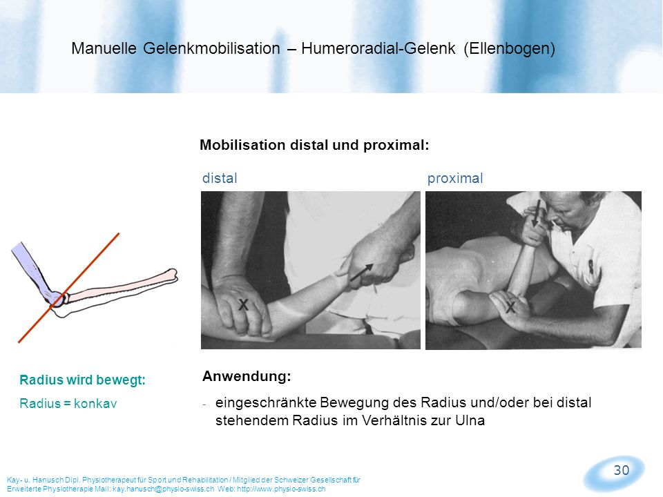 30 Mobilisation distal und proximal: distal proximal Manuelle Gelenkmobilisation – Humeroradial-Gelenk (Ellenbogen) Kay- u. Hanusch Dipl. Physiotherap