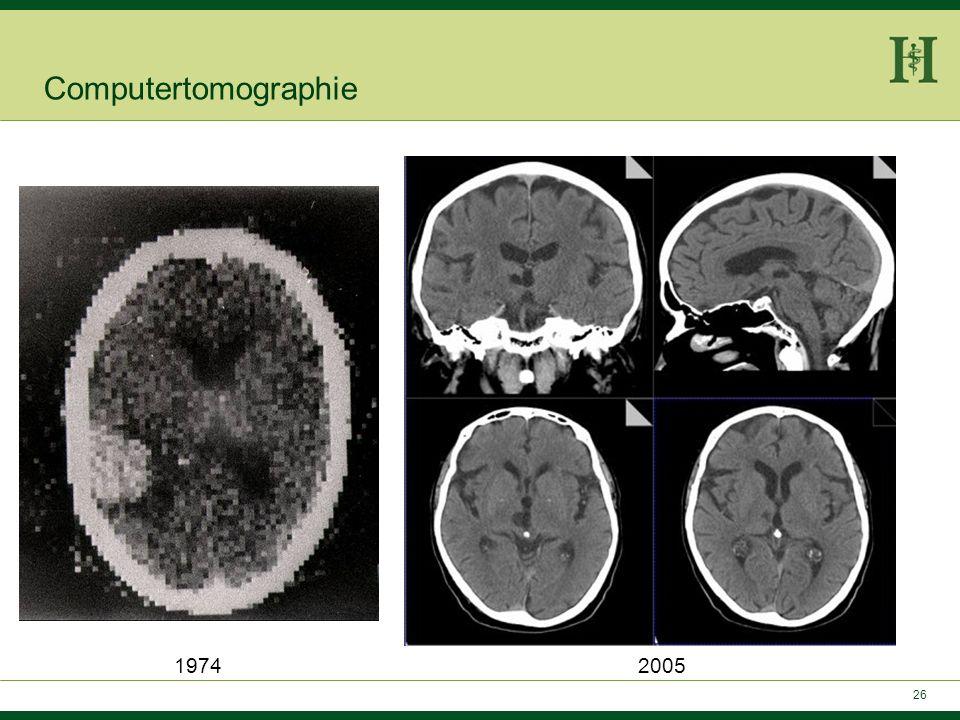 25 1989 Kalender präsentiert Spiral-CT: Computertomographie