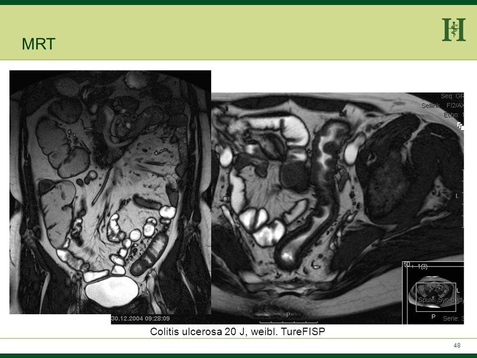 47 Colitis ulcerosa: -Darmwandverdickung -Keine skip-lesions -Mesenteriale Hypervaskularisierung -Mesenteriale Lymphadenopathie -Vakatfettwucherung MR