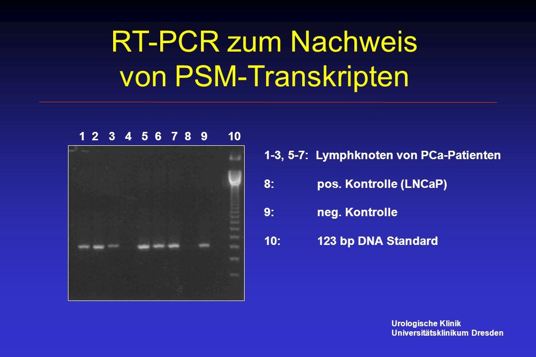 RT-PCR zum Nachweis von PSM-Transkripten Urologische Klinik Universitätsklinikum Dresden 1 2 3 4 5 6 7 8 9 10 1-3, 5-7: Lymphknoten von PCa-Patienten