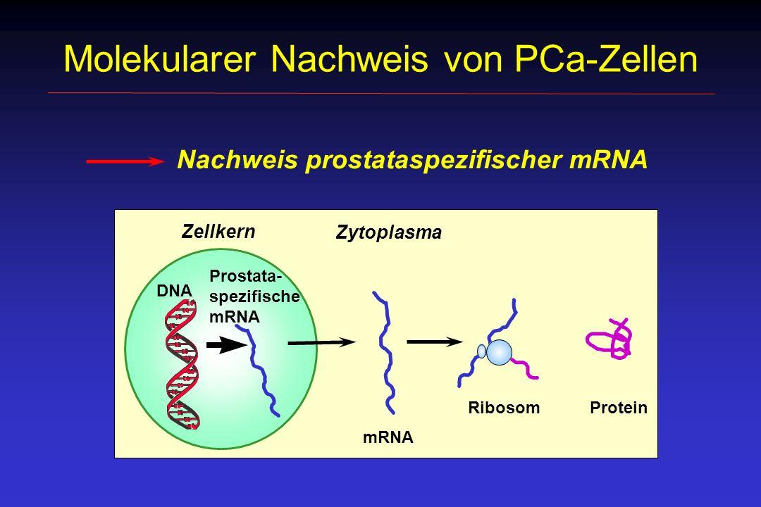Nachweis prostataspezifischer Transkripte mittels RT-PCR Lymphknoten- gewebe Isolierung der Gesamt RNA Dnase I-Behandlung cDNA-Synthese Transkript-spezifische PCR AAA mRNA cDNA PCR AAA TTT
