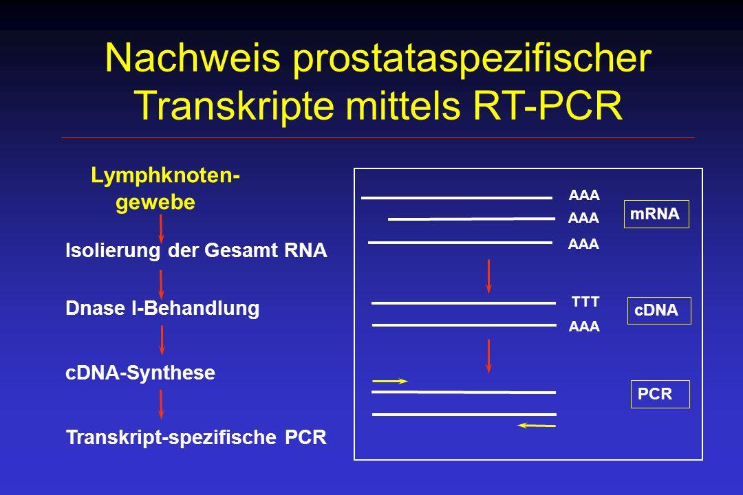 Nachweis prostataspezifischer Transkripte mittels RT-PCR Lymphknoten- gewebe Isolierung der Gesamt RNA Dnase I-Behandlung cDNA-Synthese Transkript-spe