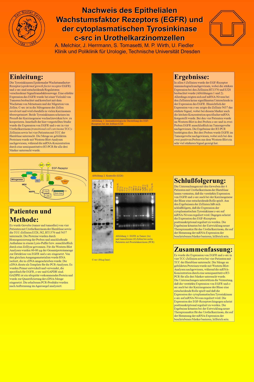 Nachweis des Epithelialen Wachstumsfaktor Rezeptors (EGFR) und der cytoplasmatischen Tyrosinkinase c-src in Urothelkarzinomzellen A.