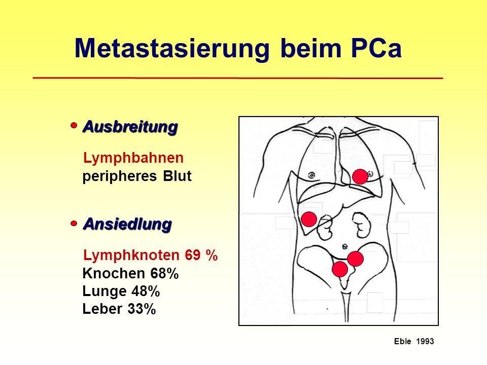 Ansiedlung Ansiedlung Lymphknoten 69 % Knochen 68% Lunge 48% Leber 33% Eble 1993 Metastasierung beim PCa Ausbreitung Ausbreitung Lymphbahnen peripheres Blut