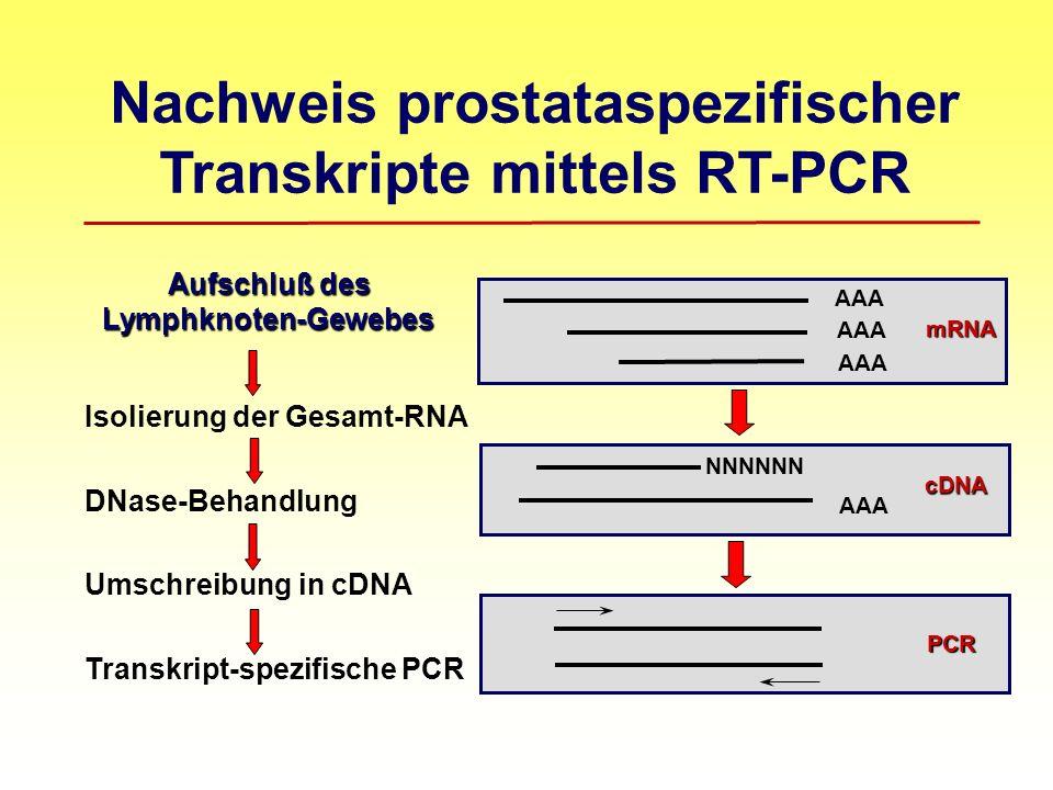 Aufschluß des Lymphknoten-Gewebes Aufschluß des Lymphknoten-Gewebes Isolierung der Gesamt-RNA DNase-Behandlung Umschreibung in cDNA Transkript-spezifische PCR AAA mRNA cDNA PCR NNNNNN Nachweis prostataspezifischer Transkripte mittels RT-PCR