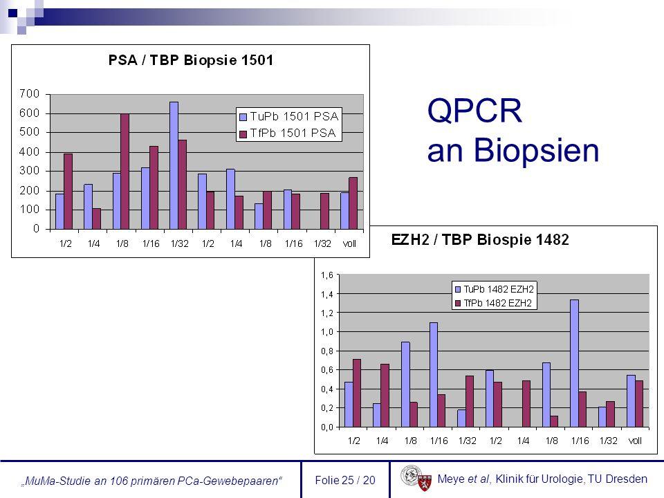 Meye et al, Klinik für Urologie, TU Dresden MuMa-Studie an 106 primären PCa-Gewebepaaren Folie 25 / 20 QPCR an Biopsien