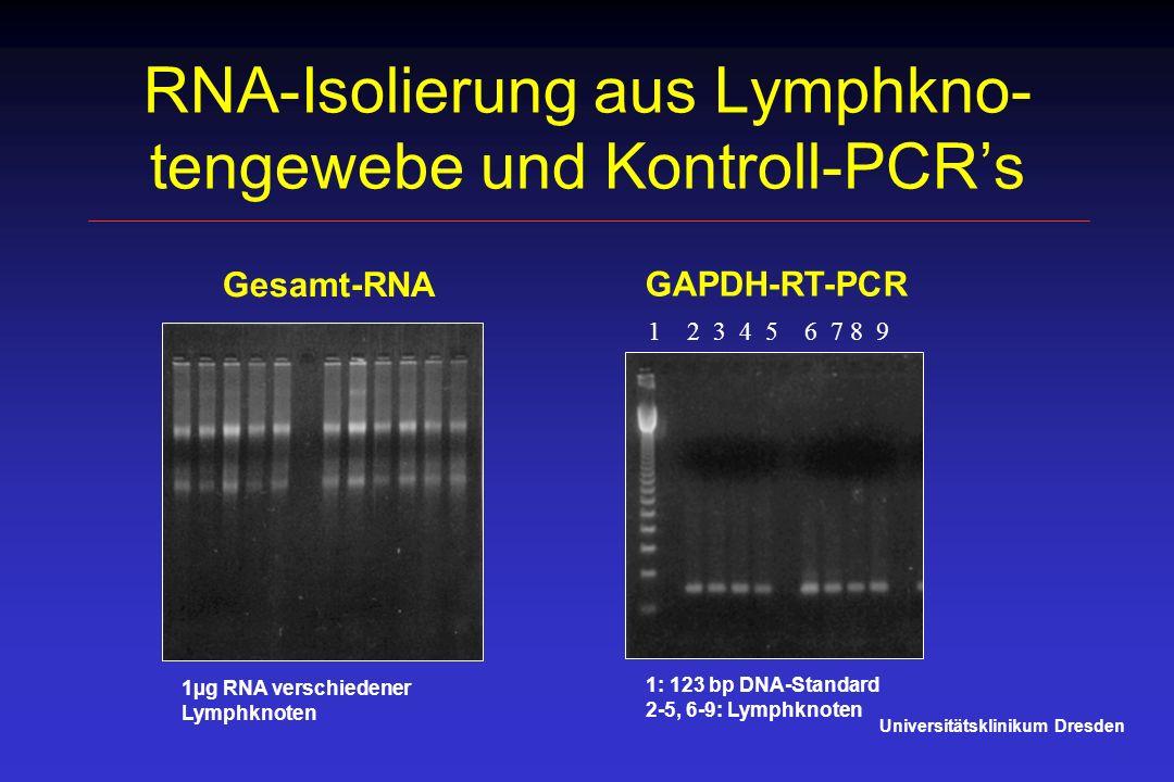 RNA-Isolierung aus Lymphkno- tengewebe und Kontroll-PCRs Universitätsklinikum Dresden 1µg RNA verschiedener Lymphknoten 1 2 3 4 5 6 7 8 9 1: 123 bp DN