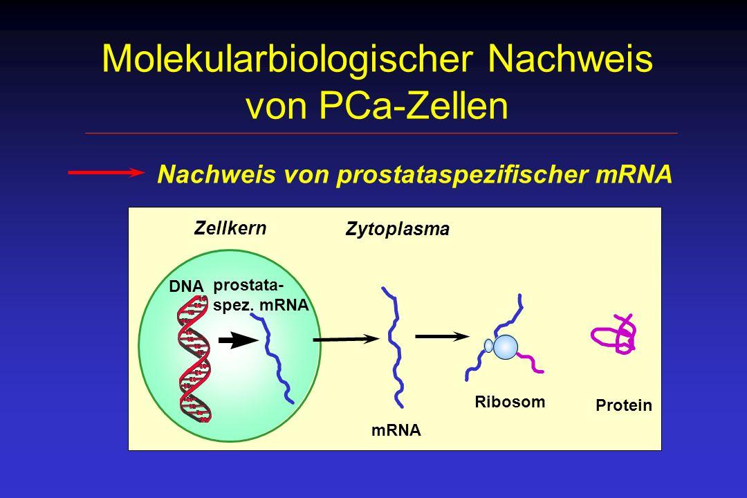 Molekularbiologischer Nachweis von PCa-Zellen Nachweis von prostataspezifischer mRNA DNA prostata- spez. mRNA Protein Ribosom Zytoplasma Zellkern mRNA