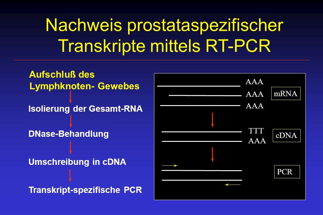 Nachweis prostataspezifischer Transkripte mittels RT-PCR Aufschluß des Lymphknoten- Gewebes Isolierung der Gesamt-RNA DNase-Behandlung Umschreibung in