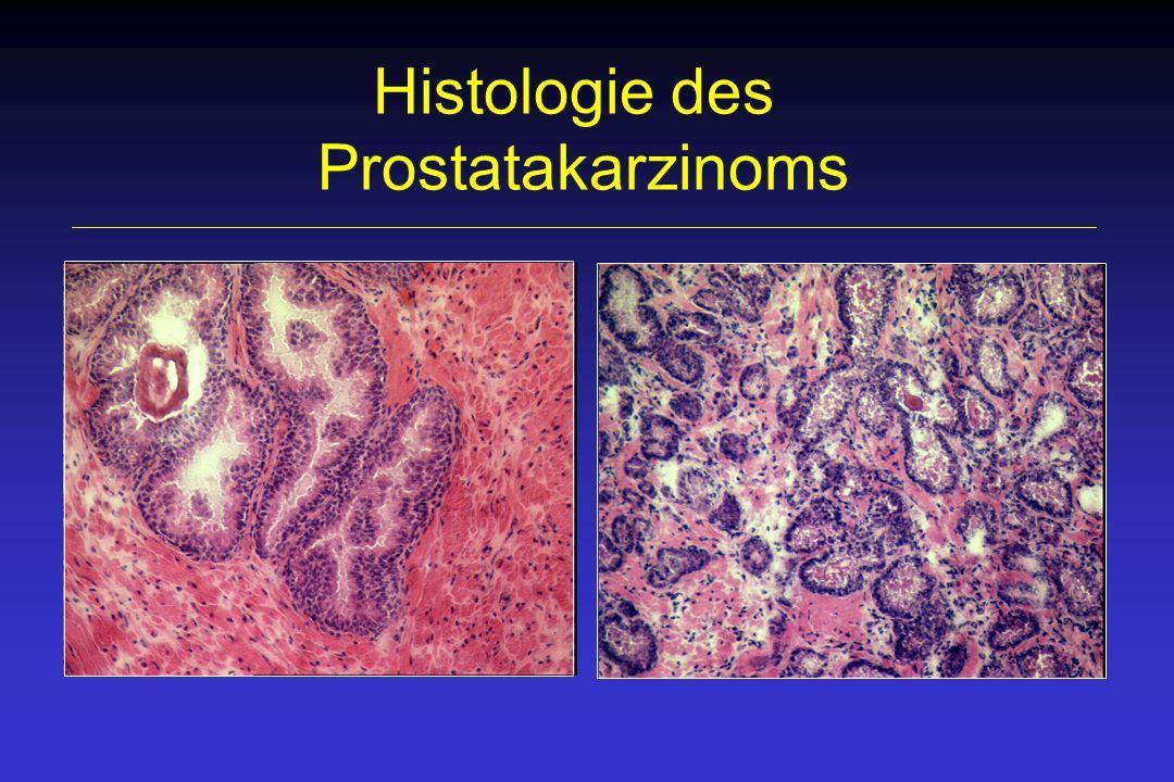 Regulation des Prostatawachstums Androgene Wachstumsfaktoren stromal-epitheliale Interaktion