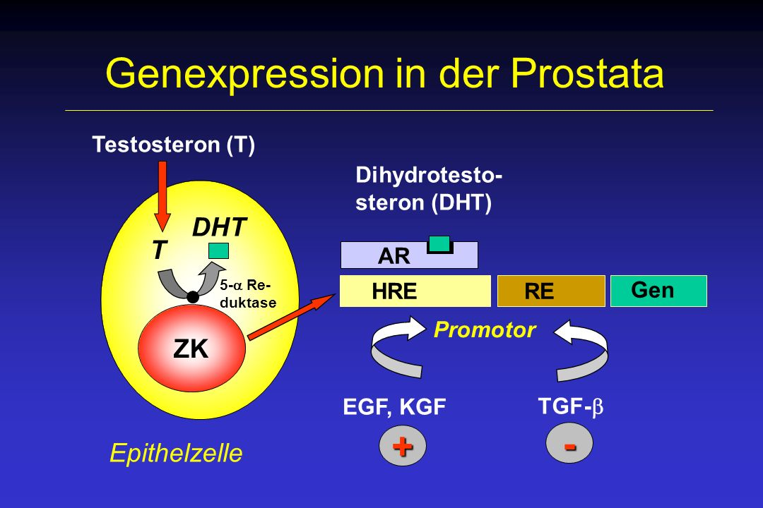 Veränderungen der Prostata Unkontrolliertes Wachstum von Prostata- zellen meist erst ab dem 50.