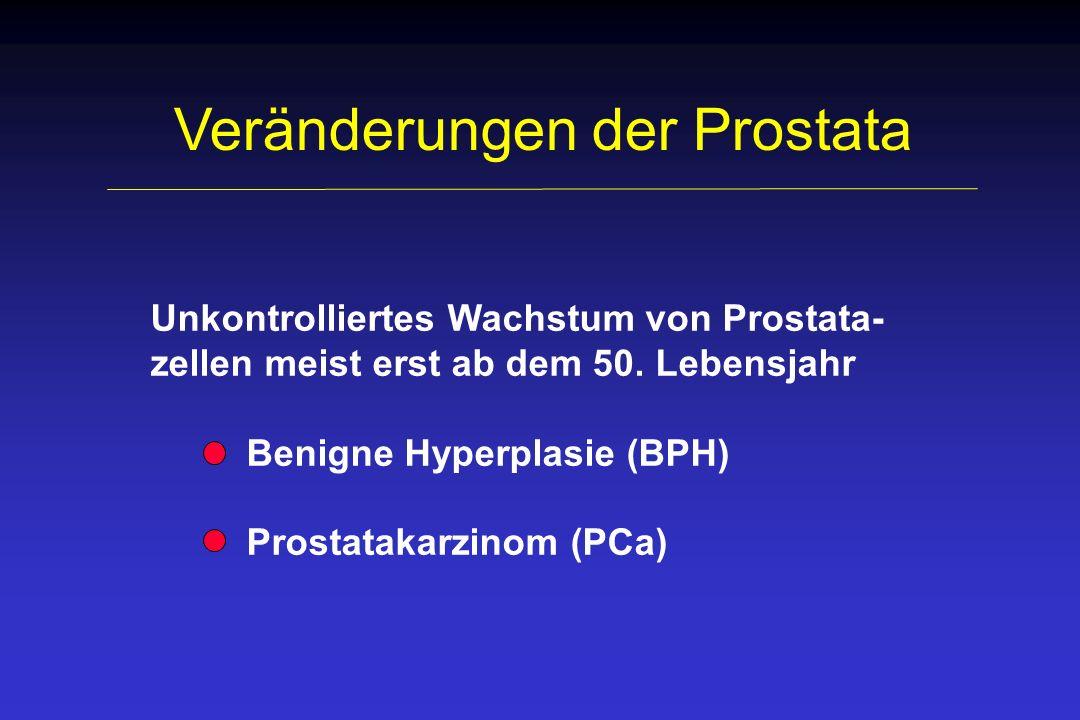 Veränderungen der Prostata Unkontrolliertes Wachstum von Prostata- zellen meist erst ab dem 50. Lebensjahr Benigne Hyperplasie (BPH) Prostatakarzinom