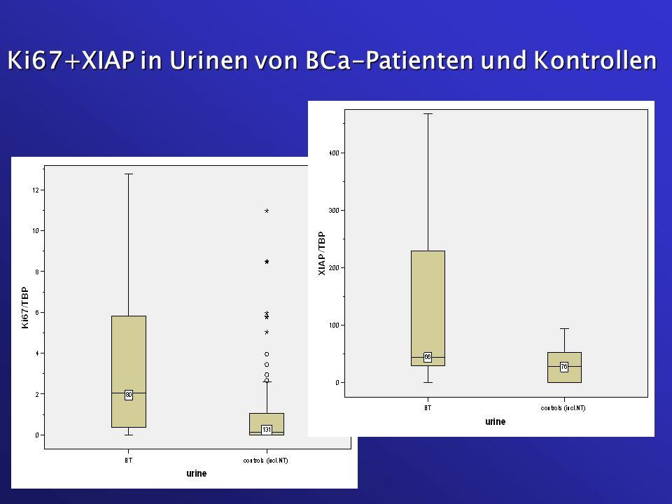 Ki67+XIAP in Urinen von BCa-Patienten und Kontrollen