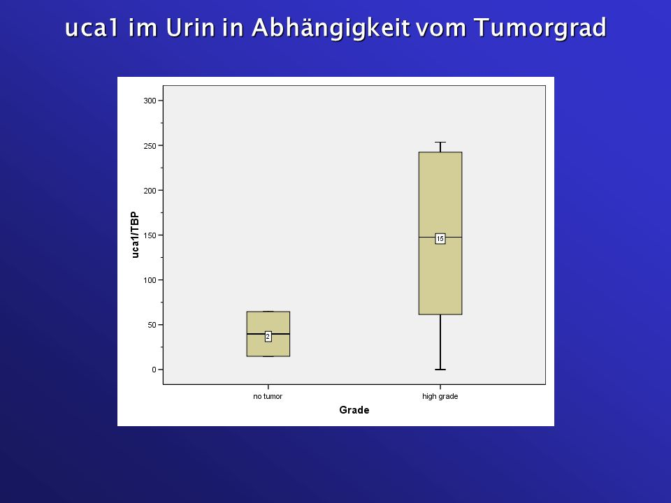 uca1 im Urin in Abhängigkeit vom Tumorgrad