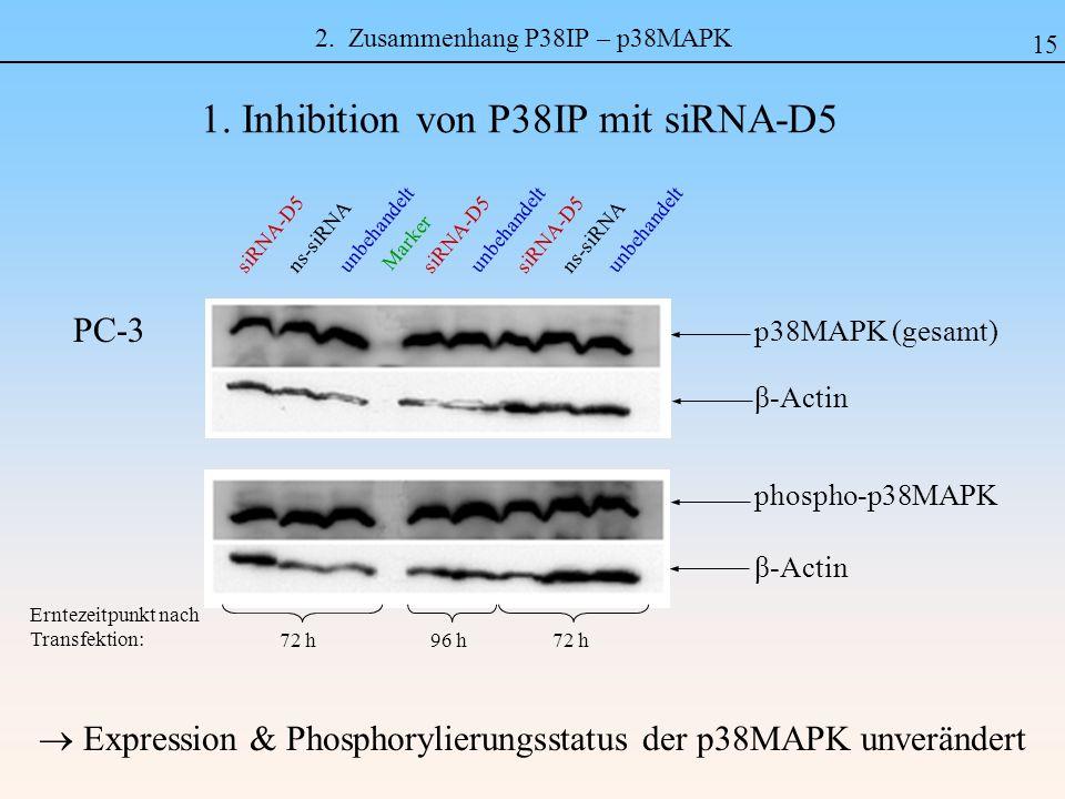 2. Zusammenhang P38IP – p38MAPK Expression & Phosphorylierungsstatus der p38MAPK unverändert 1. Inhibition von P38IP mit siRNA-D5 15 phospho-p38MAPK β