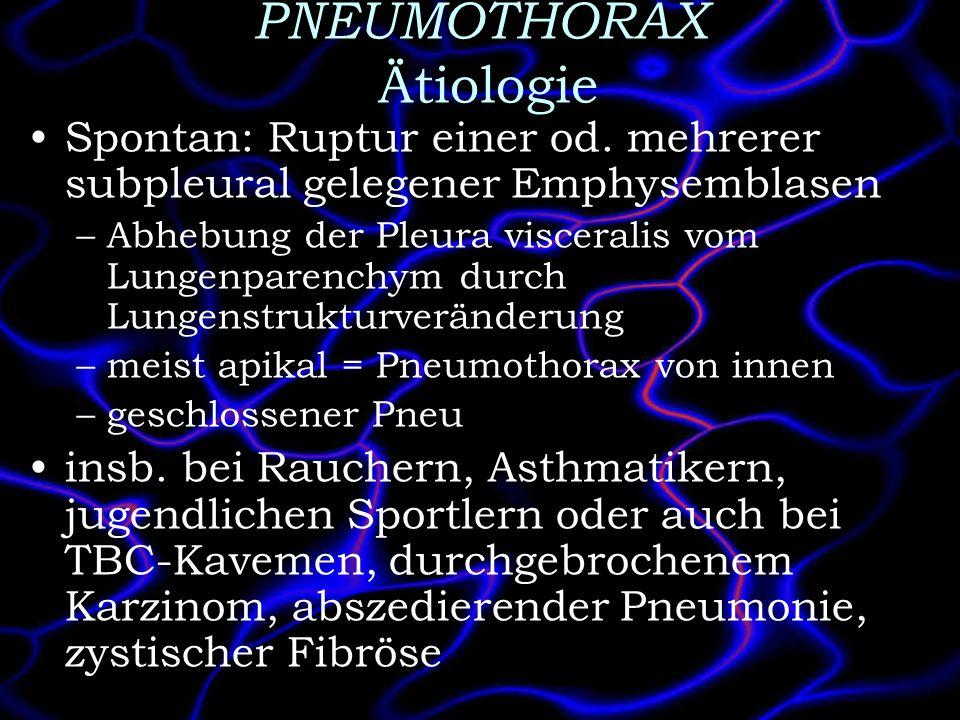 PNEUMOTHORAX Ätiologie Spontan: Ruptur einer od. mehrerer subpleural gelegener Emphysemblasen –Abhebung der Pleura visceralis vom Lungenparenchym durc