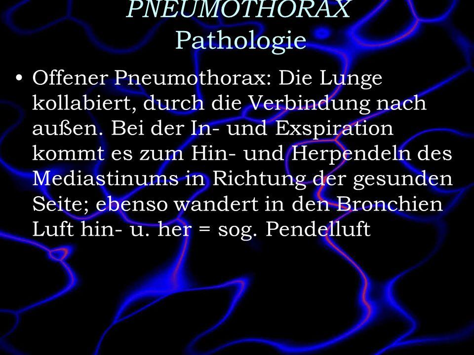 PNEUMOTHORAX Pathologie Offener Pneumothorax: Die Lunge kollabiert, durch die Verbindung nach außen. Bei der In- und Exspiration kommt es zum Hin- und
