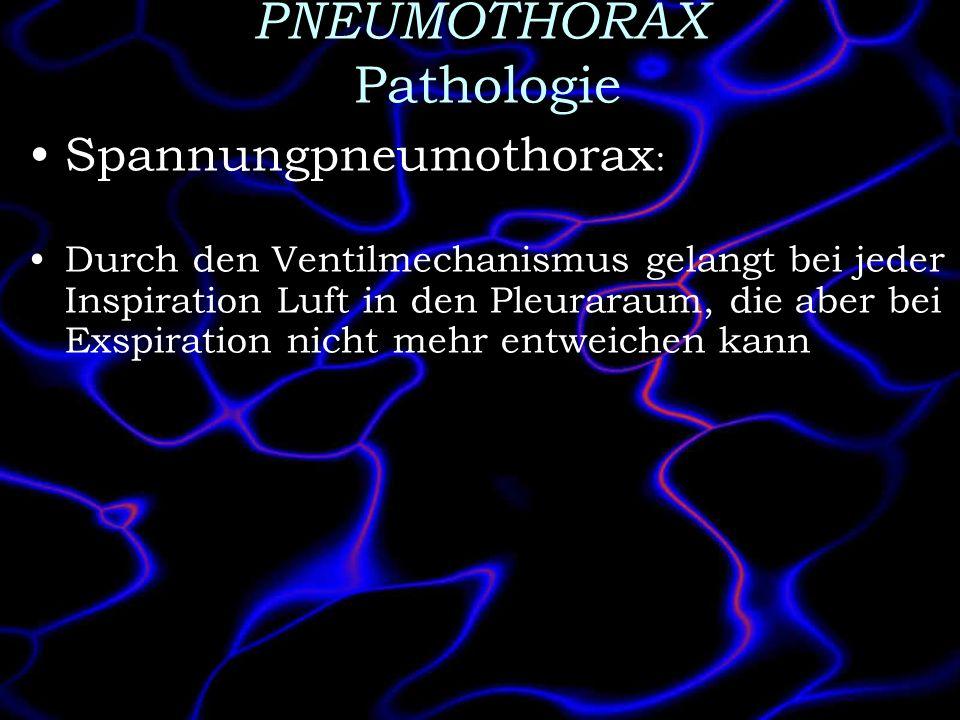PNEUMOTHORAX Pathologie Spannungpneumothorax : Durch den Ventilmechanismus gelangt bei jeder Inspiration Luft in den Pleuraraum, die aber bei Exspirat