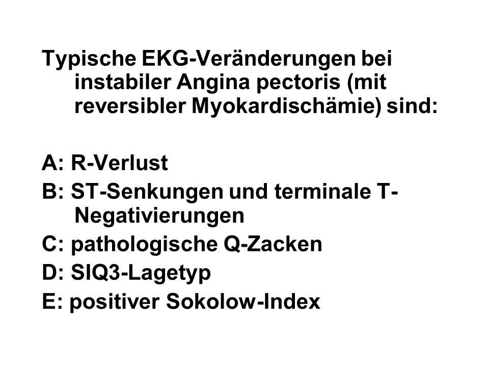 Typische EKG-Veränderungen bei instabiler Angina pectoris (mit reversibler Myokardischämie) sind: A: R-Verlust B: ST-Senkungen und terminale T- Negati