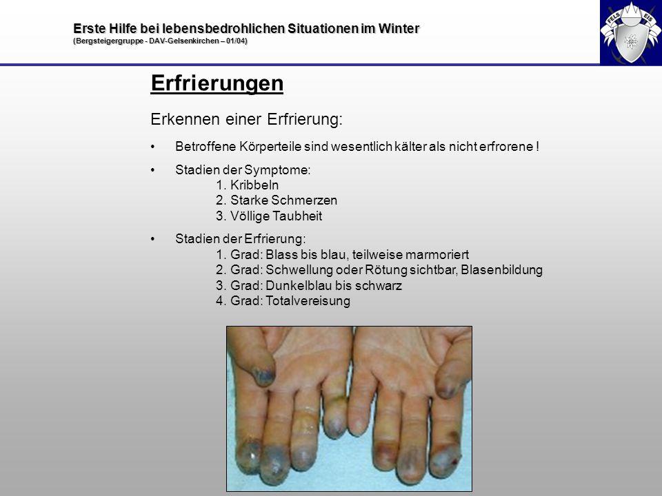Erste Hilfe bei lebensbedrohlichen Situationen im Winter (Bergsteigergruppe - DAV-Gelsenkirchen – 01/04) Erfrierungen Erkennen einer Erfrierung: Betro