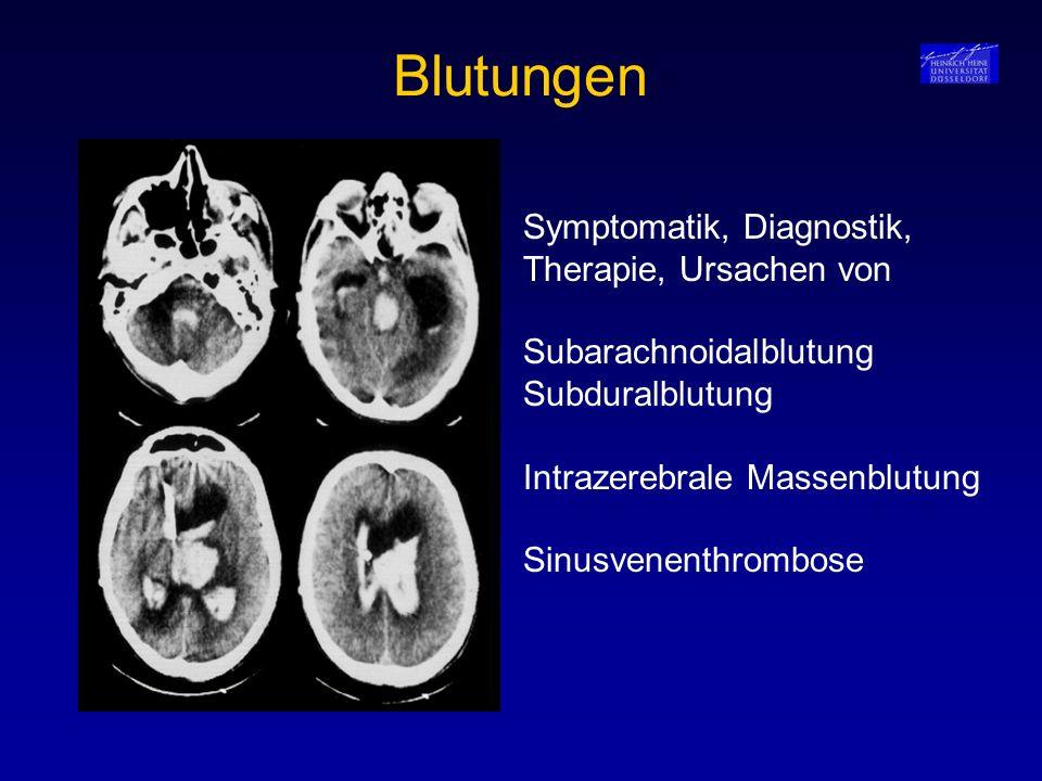 Blutungen Symptomatik, Diagnostik, Therapie, Ursachen von Subarachnoidalblutung Subduralblutung Intrazerebrale Massenblutung Sinusvenenthrombose