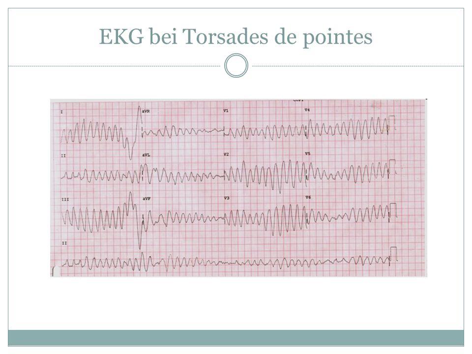 EKG bei Torsades de pointes