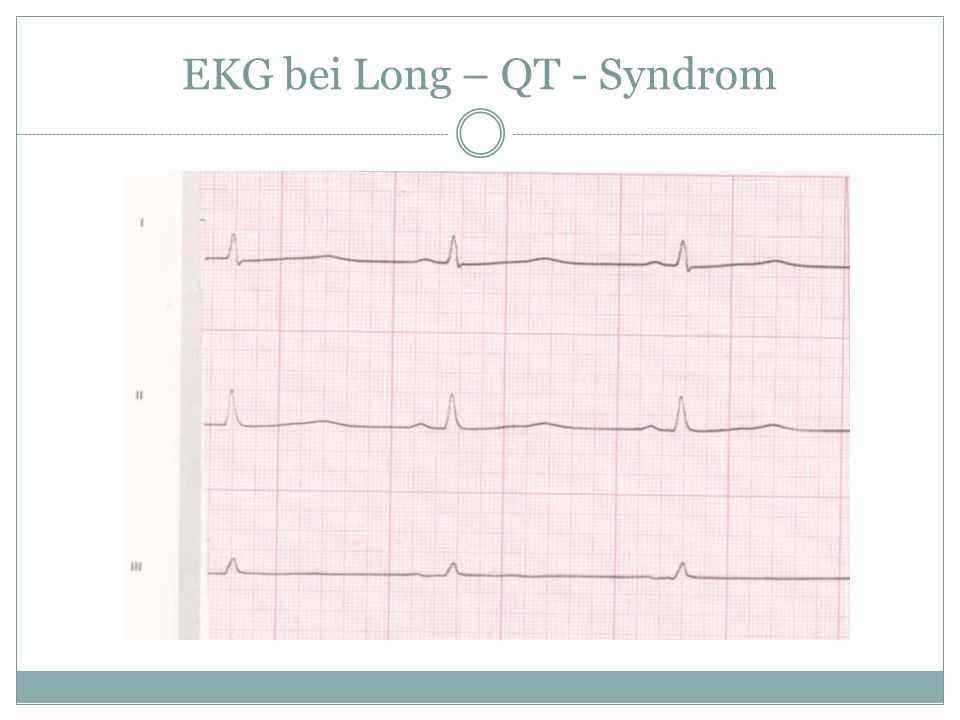EKG bei Long – QT - Syndrom
