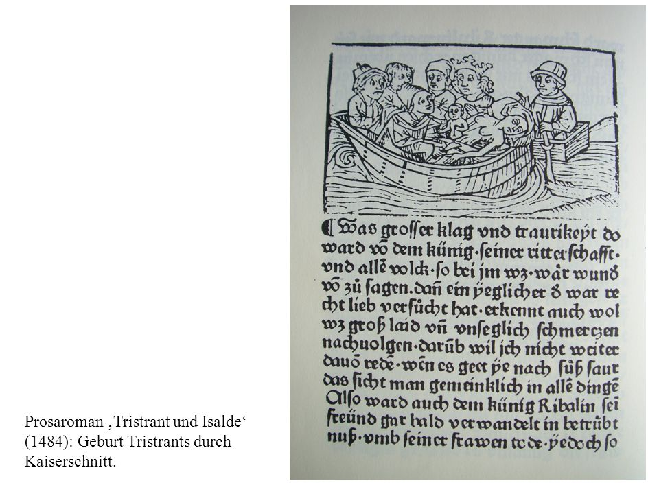 Prosaroman Tristrant und Isalde (1484): Geburt Tristrants durch Kaiserschnitt.