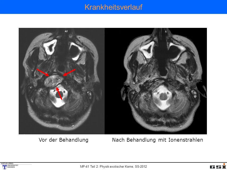 MP-41 Teil 2: Physik exotischer Kerne, SS-2012 Krankheitsverlauf Vor der BehandlungNach Behandlung mit Ionenstrahlen