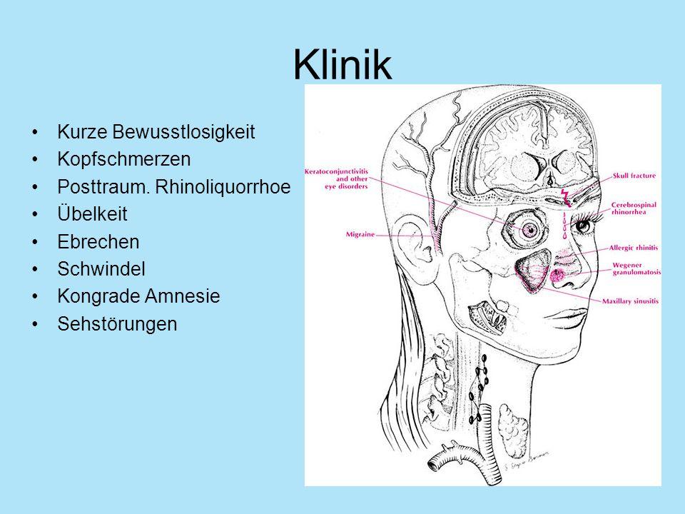 Klinik Kurze Bewusstlosigkeit Kopfschmerzen Posttraum. Rhinoliquorrhoe Übelkeit Ebrechen Schwindel Kongrade Amnesie Sehstörungen