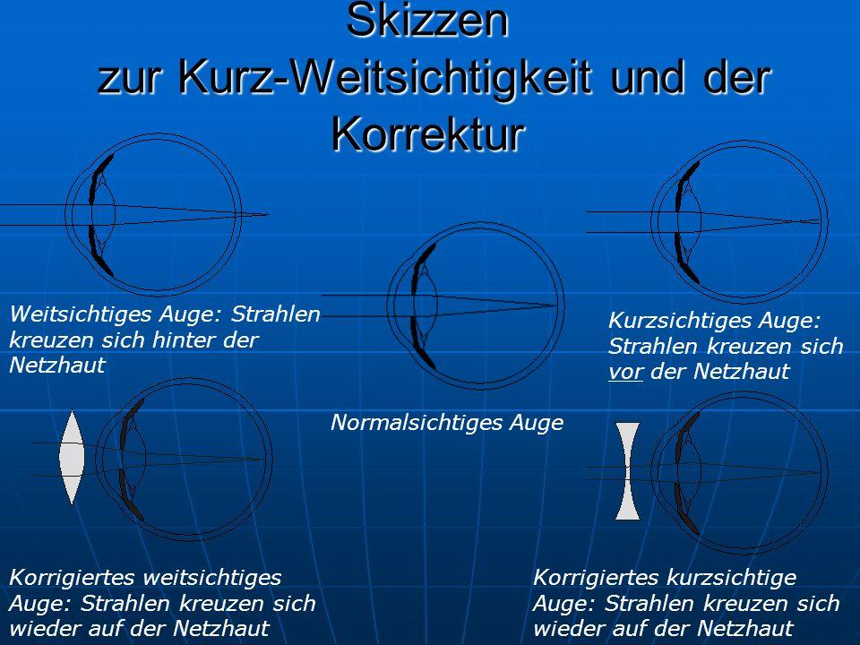 Skizzen zur Kurz-Weitsichtigkeit und der Korrektur Normalsichtiges Auge Weitsichtiges Auge: Strahlen kreuzen sich hinter der Netzhaut Korrigiertes weitsichtiges Auge: Strahlen kreuzen sich wieder auf der Netzhaut Kurzsichtiges Auge: Strahlen kreuzen sich vor der Netzhaut Korrigiertes kurzsichtige Auge: Strahlen kreuzen sich wieder auf der Netzhaut