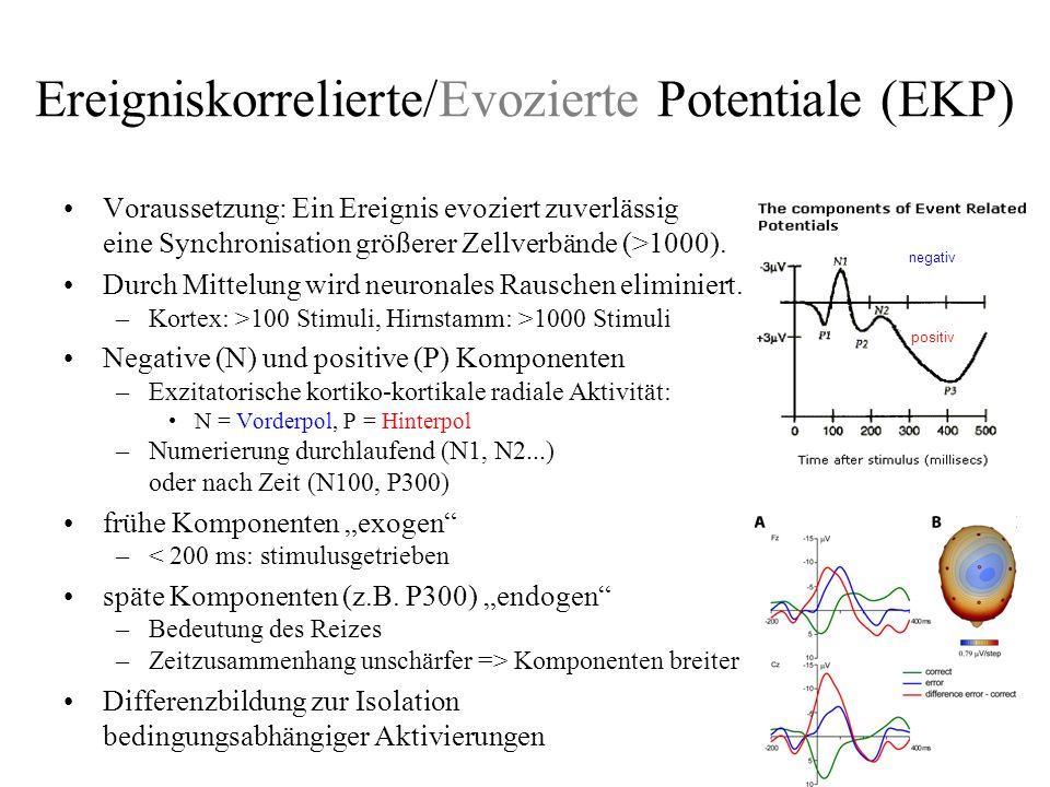 Quellenlokalisation von EKP im EEG Voraussetzung –Hohe Elektrodenzahl, 64 oder 128 Elektroden –genaue Kenntnis der Elektrodenposition (vermessen) Problem –Vorwärtsproblem eindeutig lösbar gegeben die Quellen, wie sieht die Potentialverteilung am Skalp aus.