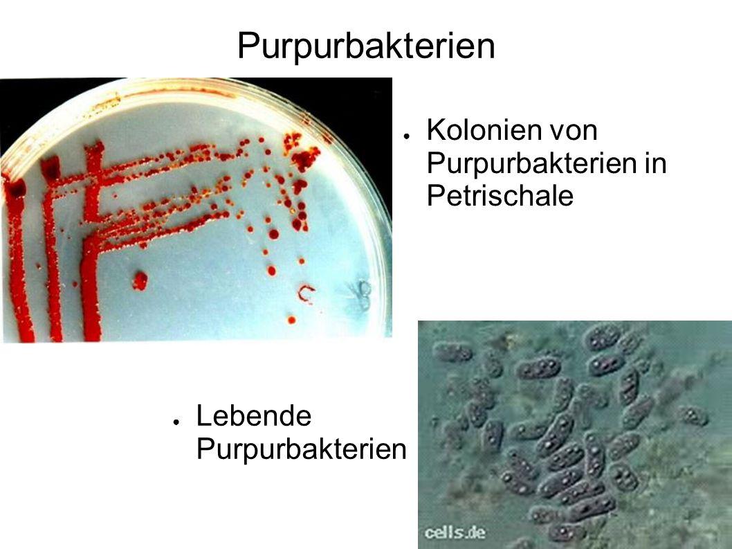 Purpurbakterien Kolonien von Purpurbakterien in Petrischale Lebende Purpurbakterien