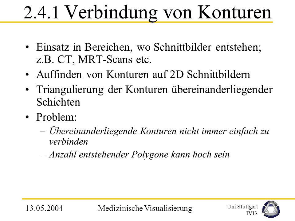 Uni Stuttgart IVIS 13.05.2004Medizinische Visualisierung 2.4 Verfahren der indirekten Volumendarstellung 1.Verbindung von Konturen 2.Cuberille-Methode