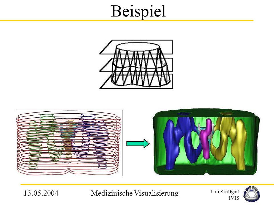 Uni Stuttgart IVIS 13.05.2004Medizinische Visualisierung 2.4.1 Verbindung von Konturen Einsatz in Bereichen, wo Schnittbilder entstehen; z.B. CT, MRT-
