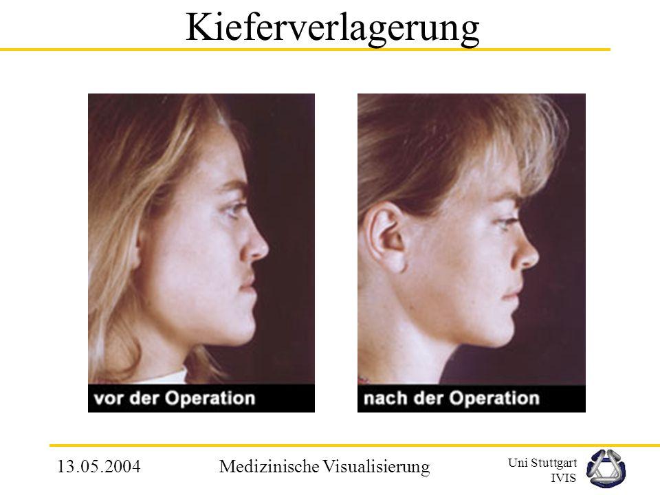 Uni Stuttgart IVIS 13.05.2004Medizinische Visualisierung MCA – Praktische Realisierung Index: 1000 1110 –v1, v5, v6, v8 – oberhalb –v2, v3, v4, v7 – unterhalb Kantenschnittpunkte durch lineare Interpolation –e – Punkte Bildung der Dreiecke –Bsp: (e1, e10, e6)
