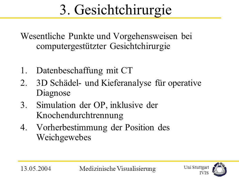 Uni Stuttgart IVIS 13.05.2004Medizinische Visualisierung 3. VV am Bsp. der Gesichtchirurgie Um was geht es in der Gesichtchirurgie? Es geht darum, dem